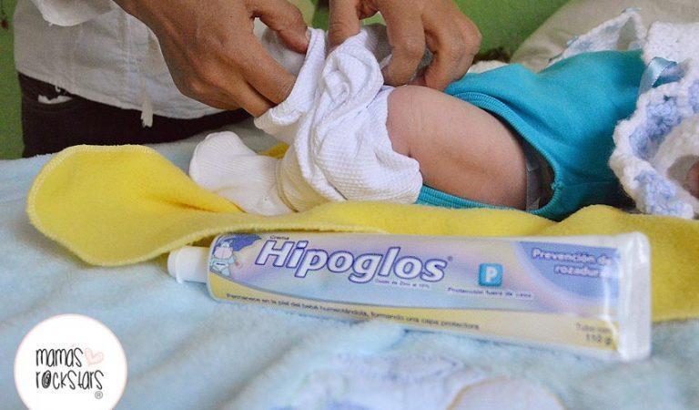 ¿Cómo aliviar las rozaduras de los bebés?