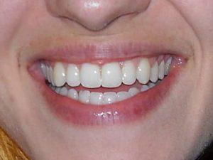 ¿Sabías que la pérdida de dientes tiene relación con las emociones?