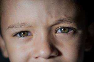 Lentes de contacto en niños